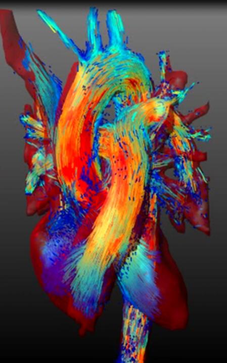 Milenio Cardio MR